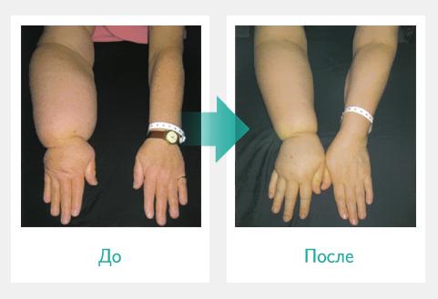 Отечность руки до и после прессотерапии Doctor Life