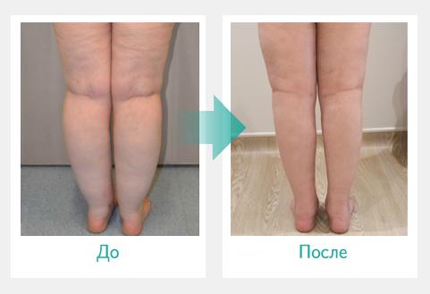 Отечность ног до и после прессотерапии Doctor Life